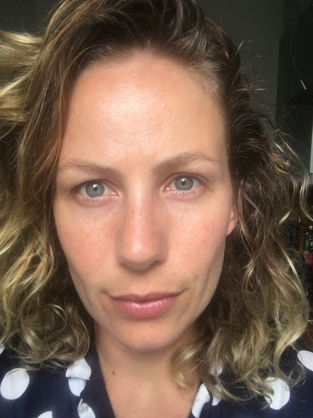 "An unfiltered, no makeup ""selfie"" about 2 hours after the treatment. Happy, glowing skin for days."