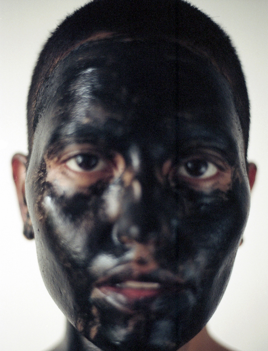 Activated charcoal powder & aloe gel