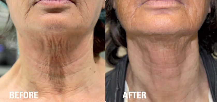 Ultraformer HIFU Before & After Turkey Neck.jpg