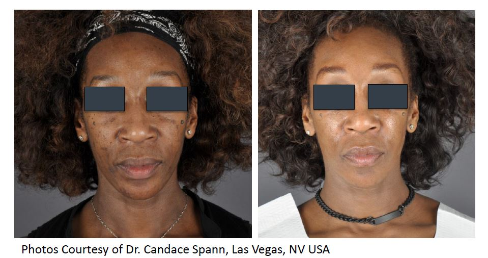 Spectra XT Before & AFter Pigmentation.JPG