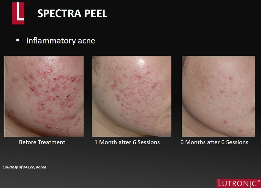 Spectra XT Before & AFter Acne.JPG