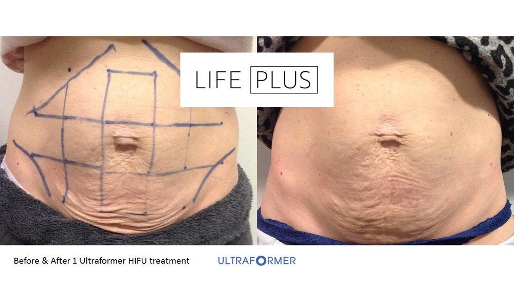 Before & After Hifu Ultraformer LifePlus.jpg