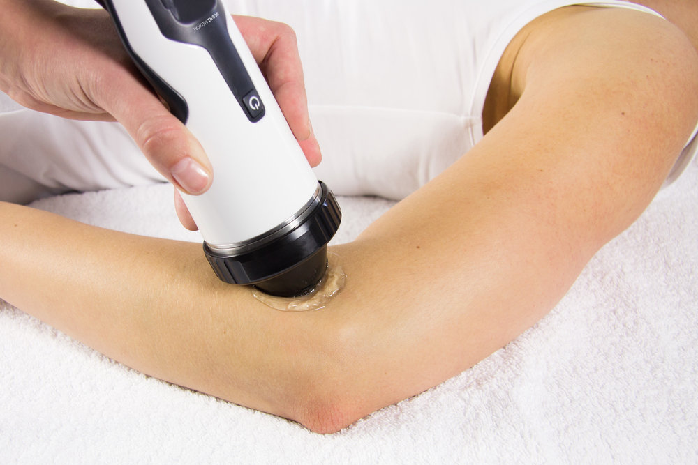 Tennis Elbow Treated with Focus Shockwave Therapy