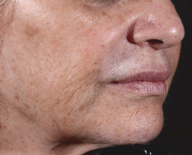 Before and After images of fractional resurfacing at La Therapie