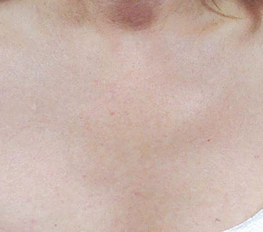 Smooth skin after IPL treatment La Therapie Spa