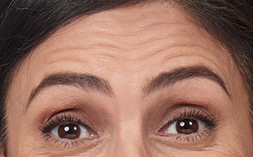 Forehead Lines Before