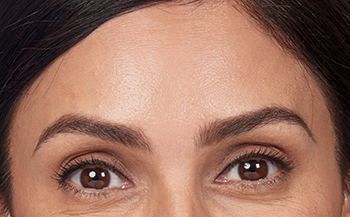 Copy of Forehead Lines After