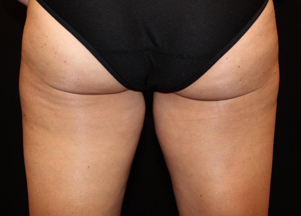 Inner Thighs Before