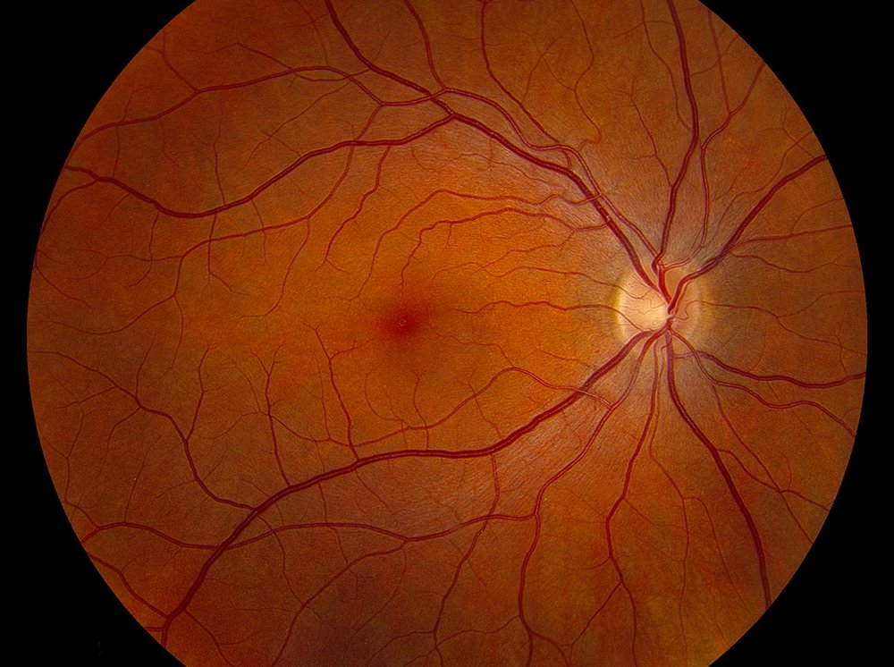 Normal-fundus-LRG.jpg