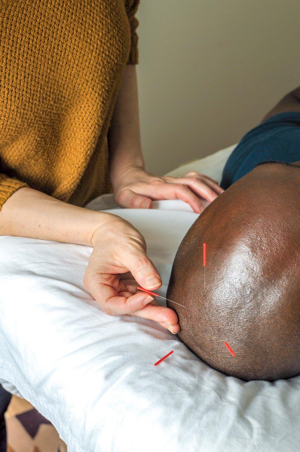 20180616-AcupunctureSpot-CAP-0572.jpg