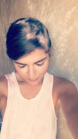 alopecia girl.JPG