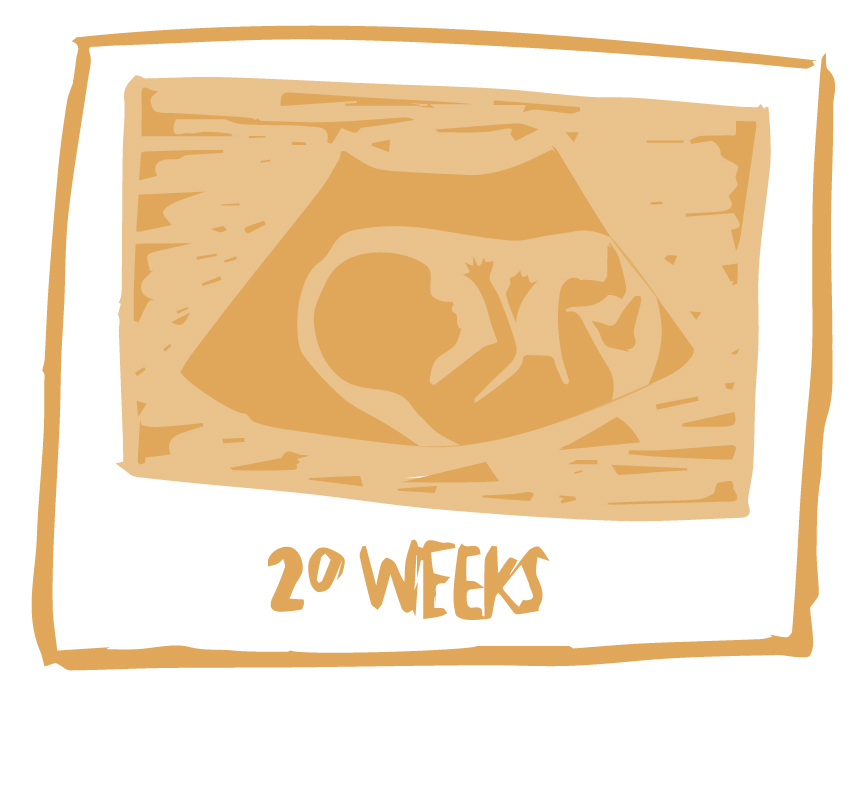29% - support a cutoff at 20 weeks of pregnancy