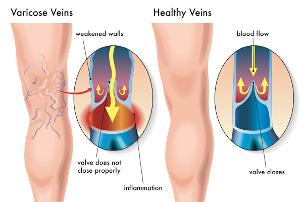 vein structure, legs,varicose veins,Unsightly leg veins,bulging veins,spider veins,top specialist
