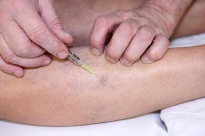 Sclerotherapy Procedure, Sclerotherapy recovery, sclerotherapy cost