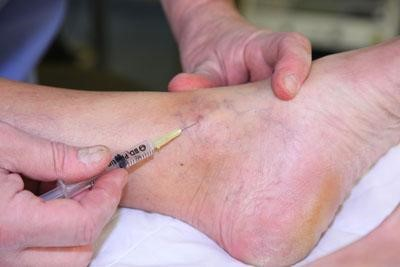 sclerotherapy in pittsburgh pa, sclerotherapy for varicose veins