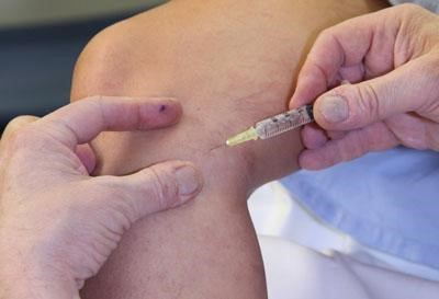 Sclerotherapy is a medical procedure used to eliminate varicose veins and spider veins