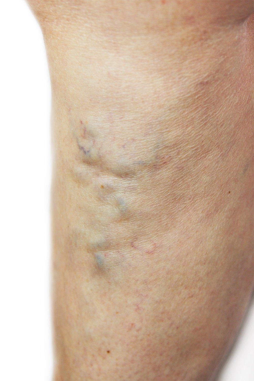 Man with varicose veins,Unsightly leg veins,bulging veins,spider veins,top varicose vein
