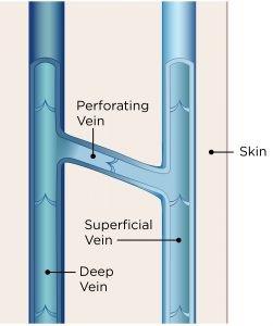 vein structure, legs,varicose veins,Unsightly leg veins,bulging veins,spider veins,top specialist
