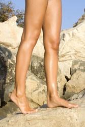 Women's legs, varicose veins, after varicose vein treatment, Pittsburgh Vein Center
