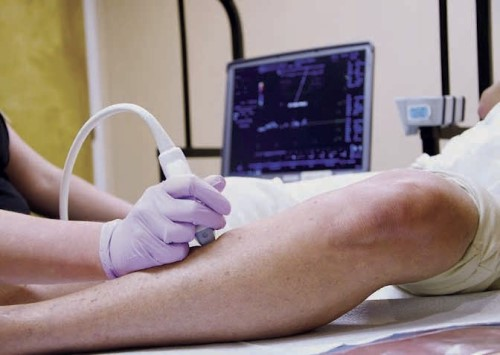 Man with varicose veins, steps to healthy legs, ultrasound scanning, varicose vein screening