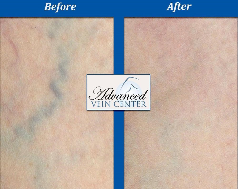 Vein treatments, Before and After, Results of vein procedures, top vein specialist