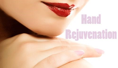 Dermal Fillers,injections,hand veins,rejuvenation,Juvéderm,Radiesse,Restylane,Sculptra Aesthetic