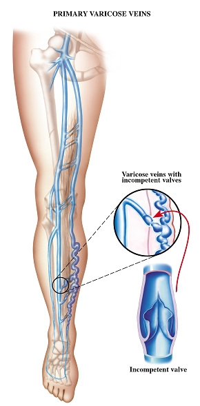 FREE Vein Screenings Call   724-987-3220 REQUEST A FREE CONSULTATION