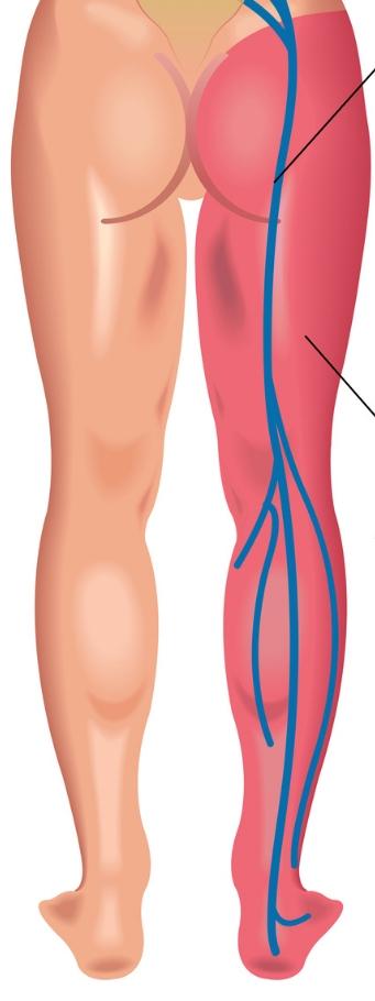 Picture veins in leg