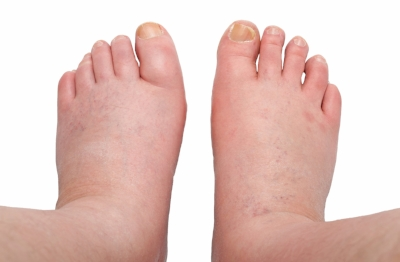 picture of swollen feet.jpg