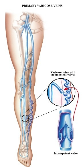 Pregnacy Vein Care Picture