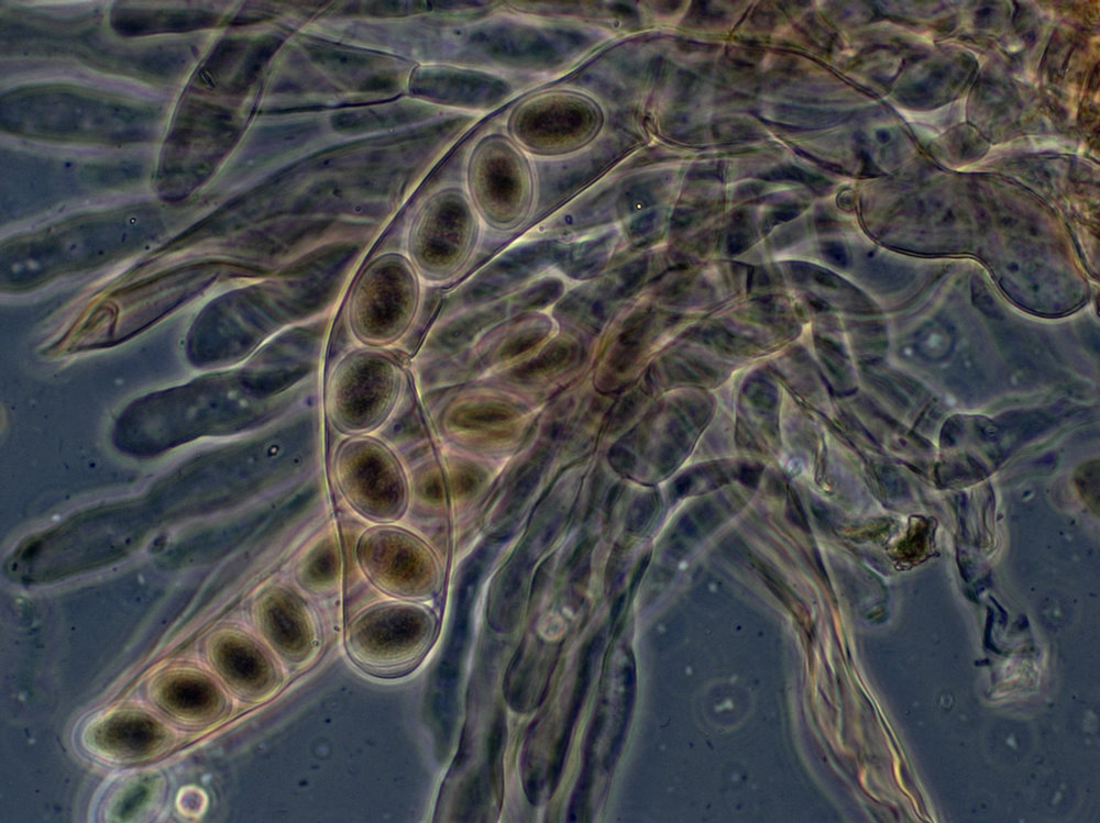 Asci and ascospores, of Morchella elata. By Peter G. Werner.