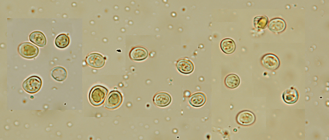 Thick-walled spores of  Phellinus pomaceus .