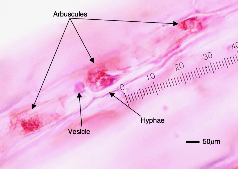 The three fungal structures formed within plant roots.