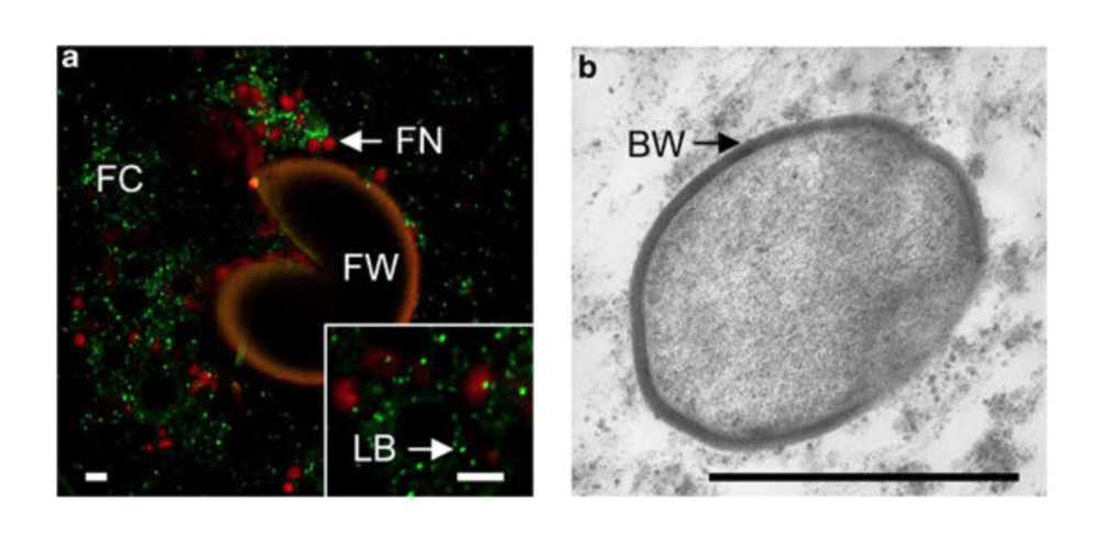 a.) Manually crushed AMF spore with dead (red) and alive (green) endobacteria within. b.) Intact bacteria within AMF hyphae.  Naumann et al. 2010 .