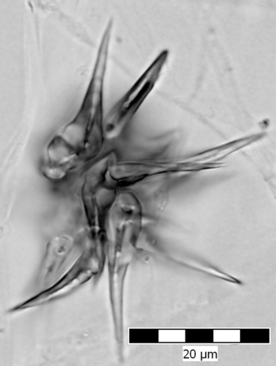Acanthocyte of  S. rugosoannulata .  Zouhar et al. 2013 .