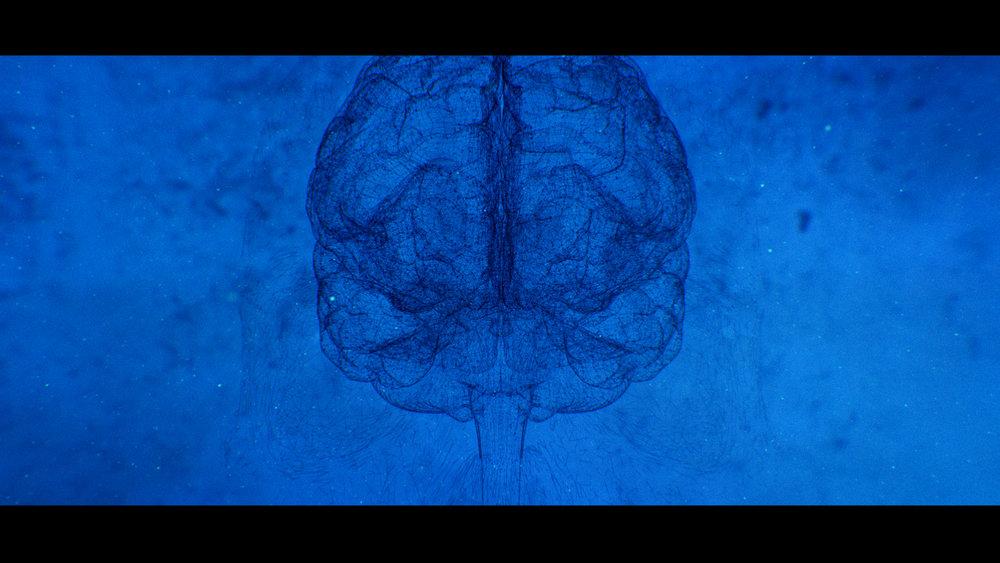 171128_brain cam3_v2.jpg
