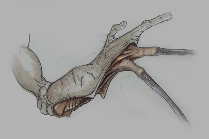 Beziel forearm