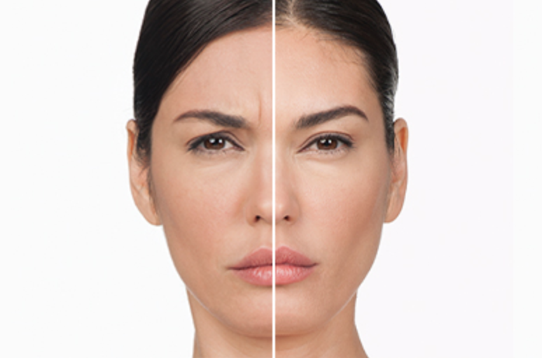 Before and after Botox results.