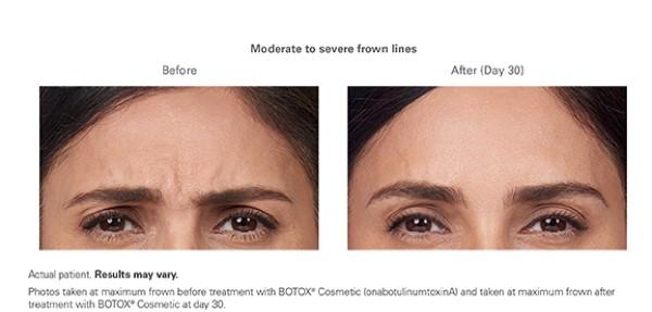 Botox for Wrinkles.jpg