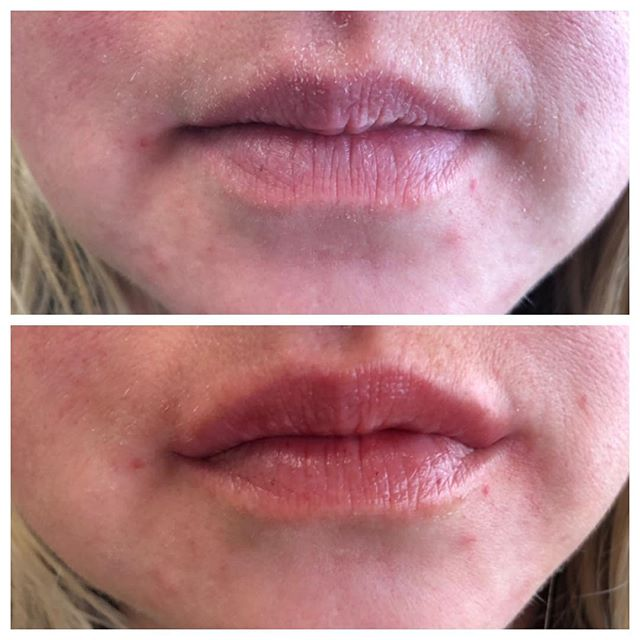 Perfect little pout with only 0.5ml of filled in lips! #fillers #lipfillers #lip #lipinjections #restylane #volbella