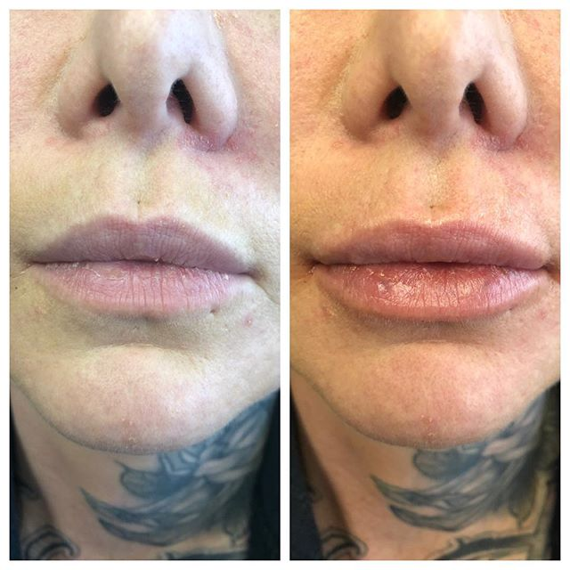 1ml in lips for a little lip plump! #restylane #volbella #lipinjections #lip #lipfillers #juvederm #fillers #infiniteyouthmedicalspa #minneapolis