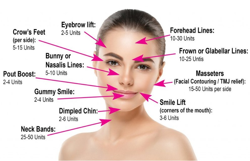 How Much Does Botox Cost - St Louis Park - Minneapolis - St Paul MN.jpg