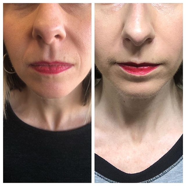 What a little filler can do in that nasolabial fold! This is the fold that extends from nose down to lip area! #fillers #medspa #voluma #juvederm #restylane #restylanelyft #botox