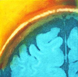 emerging, solar etching, 2009 (coronal view of the neo-cortex).jpg