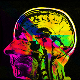 neuroplasticity (digital collage of hand-pulled prints and mris of my brain).jpg