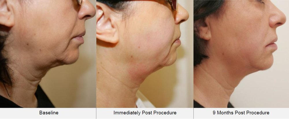 Ultraformer HIFU Face & Neck Lift