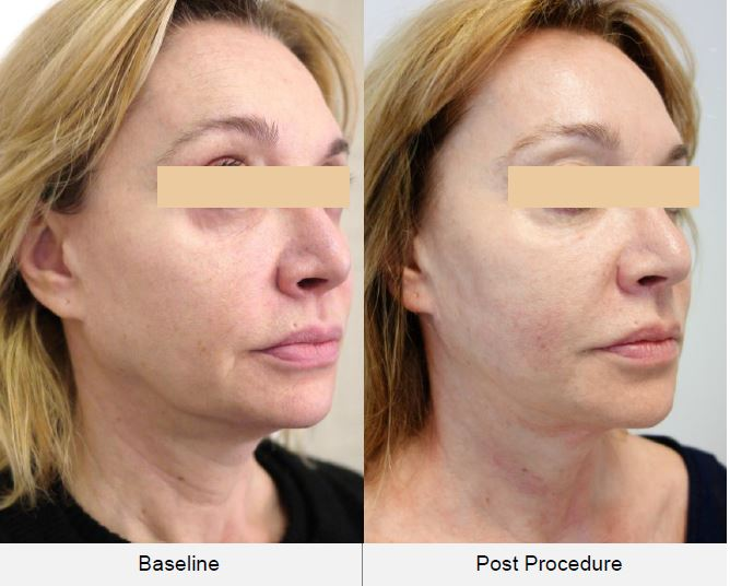 Ultraformer HIFU Treatment face lift Before & After.JPG