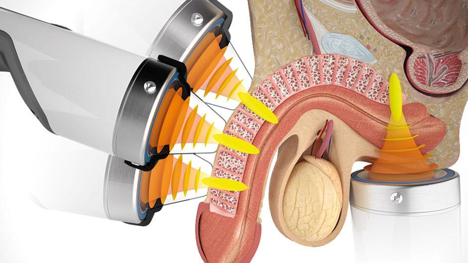 Focused Shockwave ESWT for Erectile Dysfunction