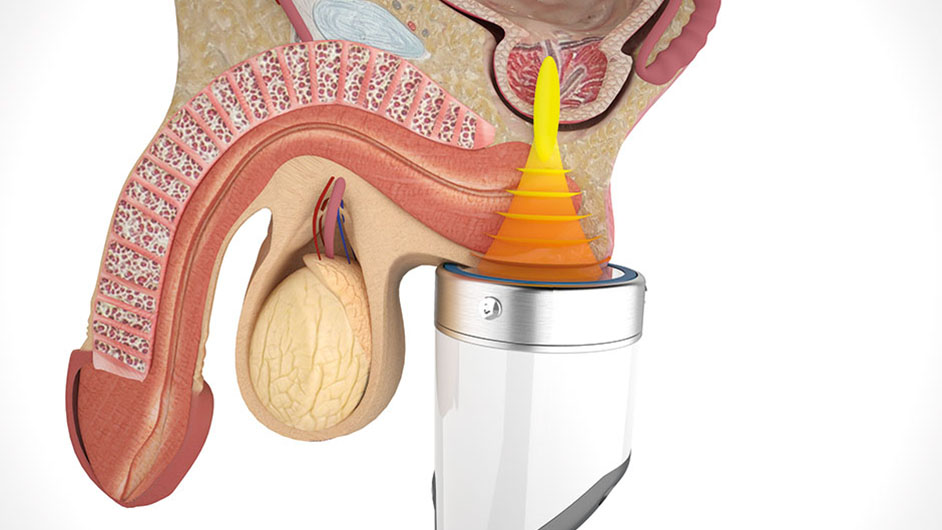 Focused Shockwave ESWT for Chronic Pelvic Pain Syndrome (CPPS)