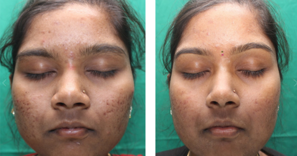 acne-scars-3-600x315.png